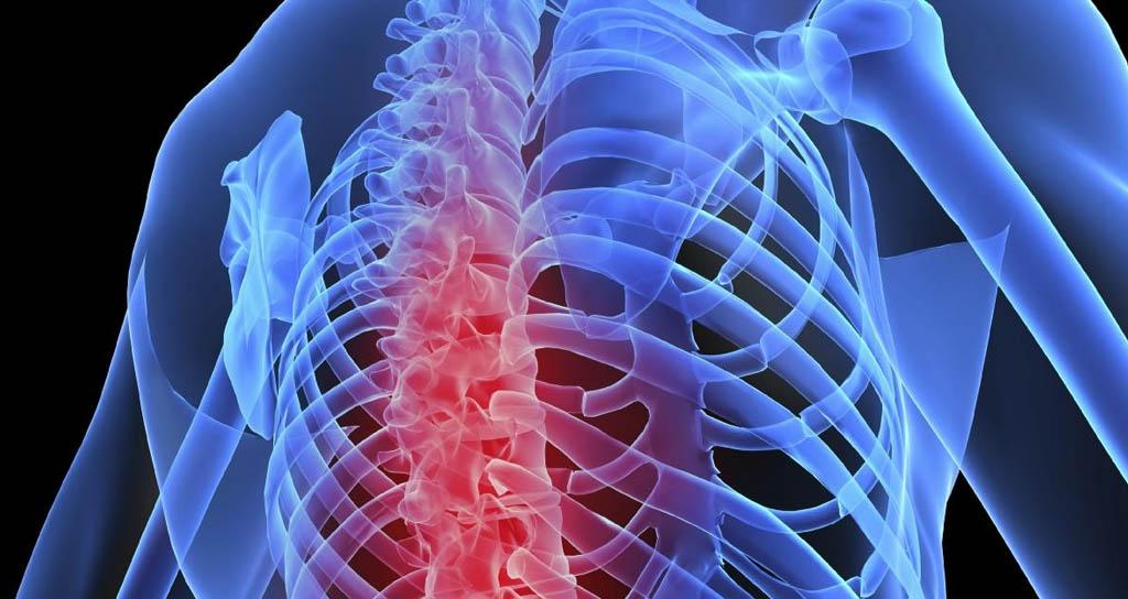 Músicos de Alto Rendimiento: El Dolor de Espalda