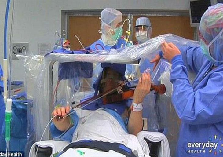 Un músico toca el violín mientras le hacen una operación en el cerebro