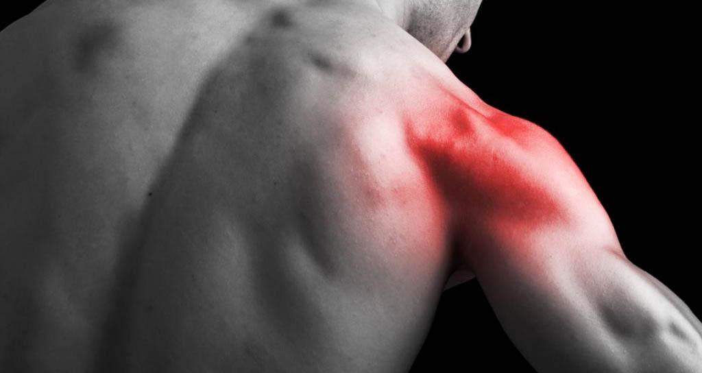 ¿De dónde viene el dolor? Tensión, Contracturas y Puntos Gatillo