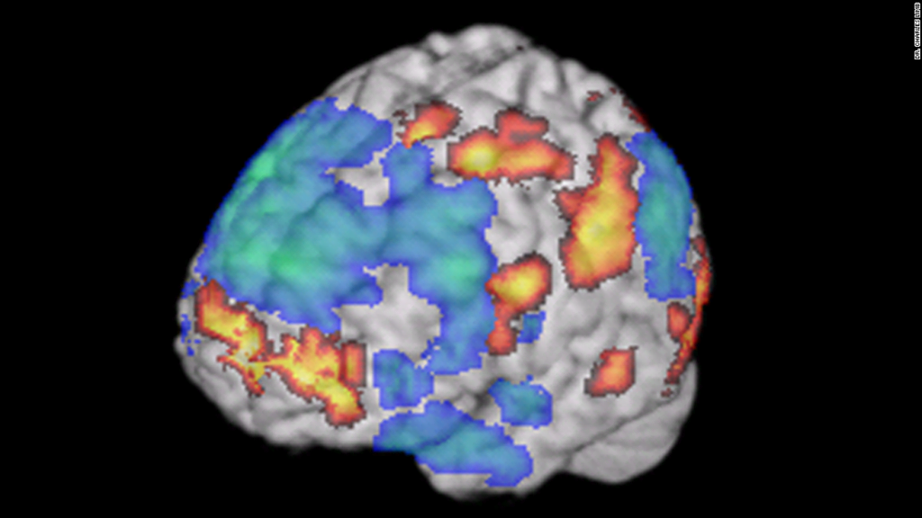 Jazz y tu cerebro: ¿la clave de la creatividad?